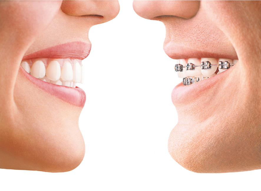 invisalign invisible braces market hill dentistry